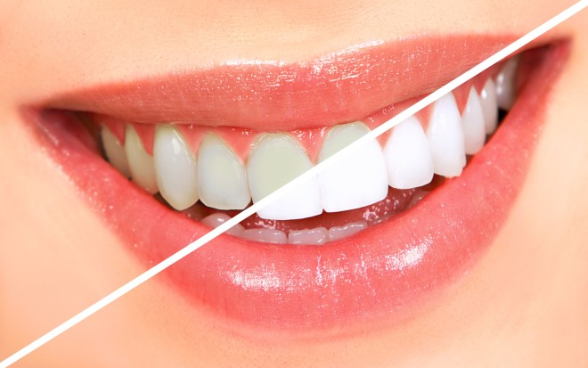 teeth whitening india.jpg
